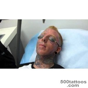 Incredible! Face Tattoo Removal   3rd Treatment at Dr Tattoff _16