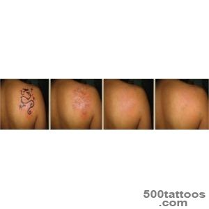 Tattoo Removal Doctors Techniques Clinics   Dr Suruchi Puri_50