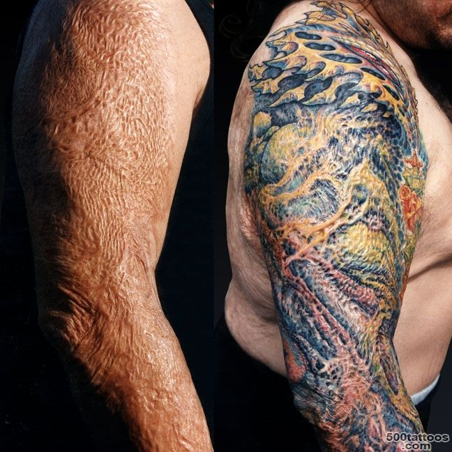 Ask Guy What about this scar Tattoo Education_23