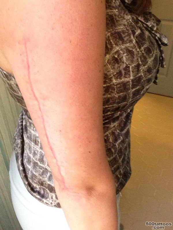 Darlin#39 Darla on Twitter Considers tattoo to cover up broken arm ..._31