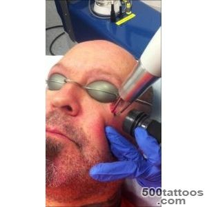 Teardrop Tattoo Removal   A Life Changing Procedure!   YouTube_13